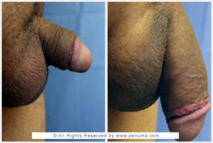 penuma penis implant before and after with Dr. Kambiz Tajkarimi