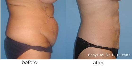 Non-Surgical Fat Reduction treatment in Leesburg, VA