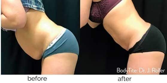 BodyTite Fat Reduction treatment in Leesburg, VA