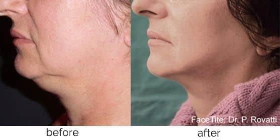 InMode Skin Tightening treatment in Leesburg, VA