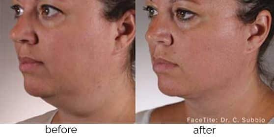 SkinTite Skin Tightening treatment in Leesburg, VA